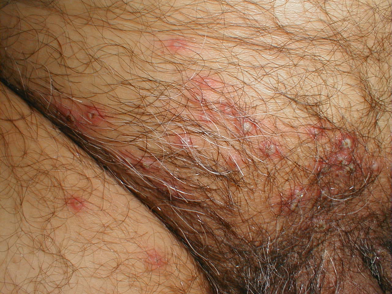 Genital herpes - Symptoms - NHS Choices